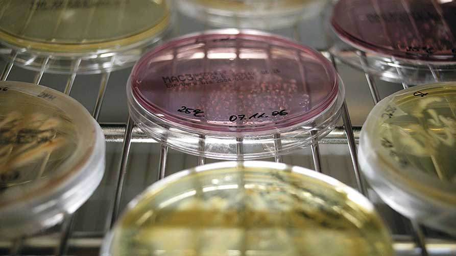 Petri dishes with sample material